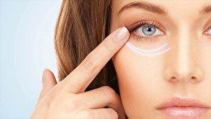 چگونه چروک های چشم را یک شبه از بین ببریم؟