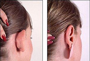 اتو پلاستی یا جراحی زیبایی گوش چیست؟