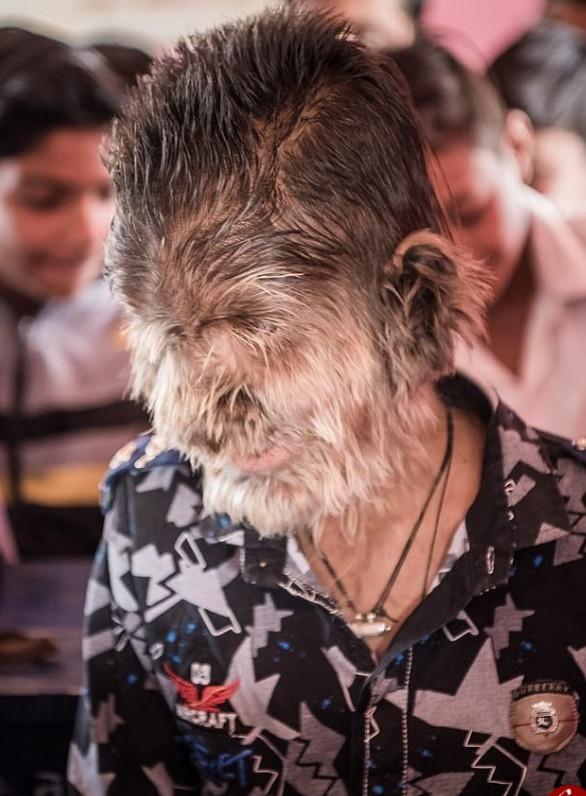ماجرای حیرتآور پسربچه گرگنما در هند (+عکس)