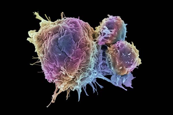 رابطه میان کاهش سطح اکسیژن بدن و رشد بیشتر سلول های سرطانی