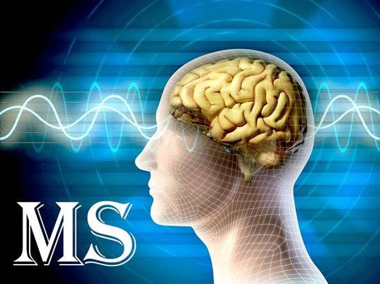بیماران ام. اس بیشتر از درمان نیازمند امنیت ذهنی و آرامش هستند