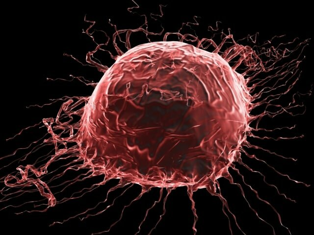 اهمیت تشخیص زود هنگام سرطان