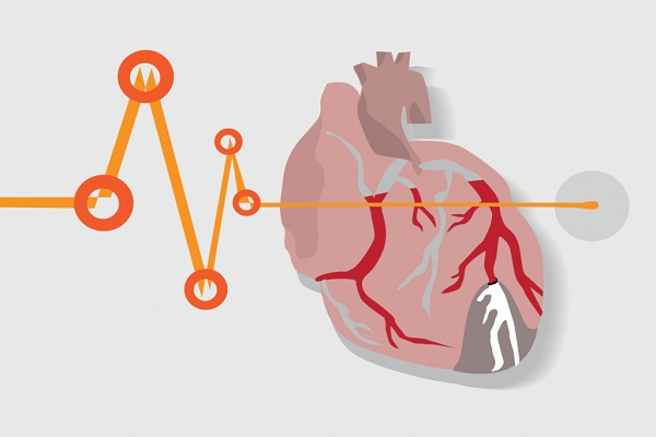موارد شگفت انگیزی که به سلامت قلب آسیب می زنند