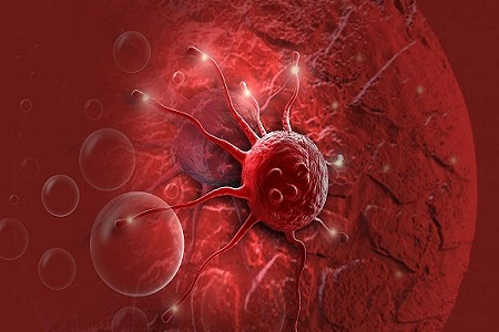 کلینیک سرطان عصر ایران