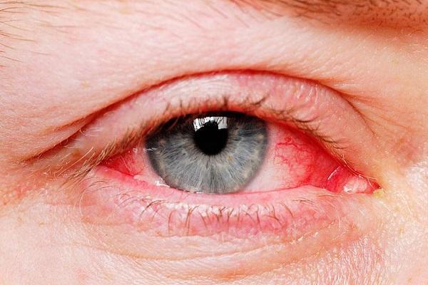 از دلایل خون گرفتگی چشمها