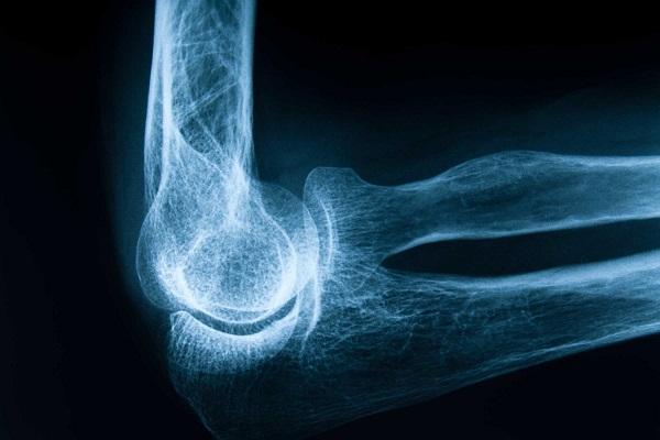 6 نشانه خاموش پوکی استخوان