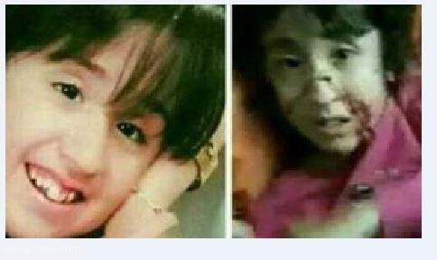 آرزوی دختری که با قمه پدرش شکنجه شد: می خواهم پیانیست شوم/ می خواهم زنده بمانم