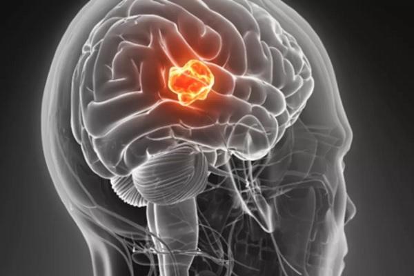 5 نشانه تومور مغزی که نباید نادیده گرفته شوند