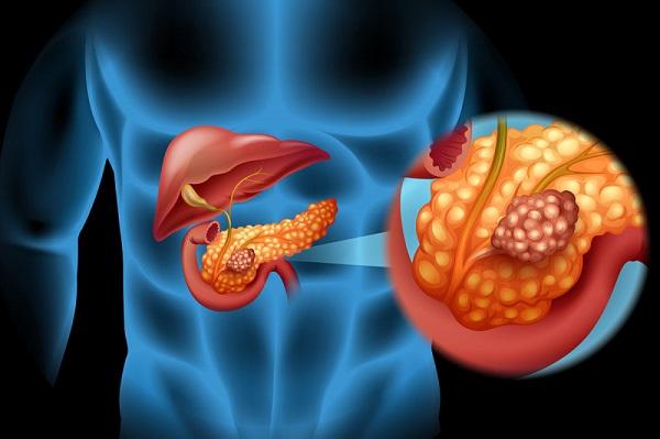 این 6 نشانه سرطان لوزالمعده را نادیده نگیرید