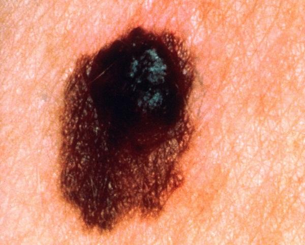 آشنایی با 5 نوع سرطان پوست