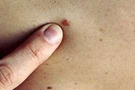 آشنایی با انواع مختلف سرطان پوست