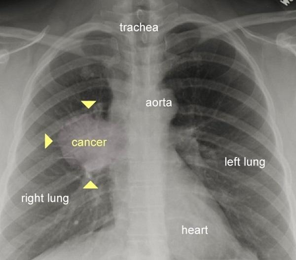 تاثیر سیگار کشیدن بر ریهها به روایت تصویر