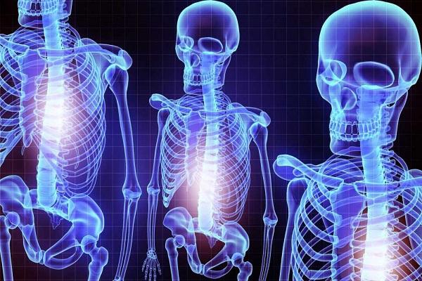 تاثیر منفی اضطراب بر سلامت استخوانی