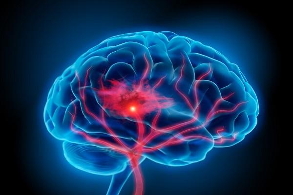 سه گانهای برای پیشگیری از سکته مغزی!