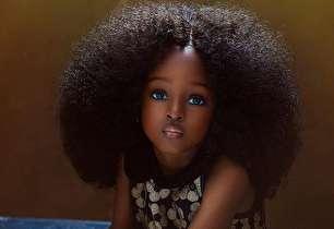 چهره شگفت انگیز زیباترین کودک جهان (+عکس)