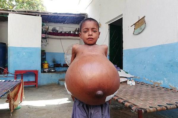 بیماری نادر پسر 9 ساله (عکس)