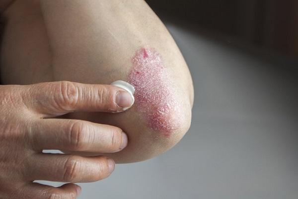 چگونگی کنار آمدن با بیماری سوریازیس
