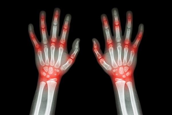 آرتریت روماتوئید و آرتروز چه تفاوتی با هم دارند؟