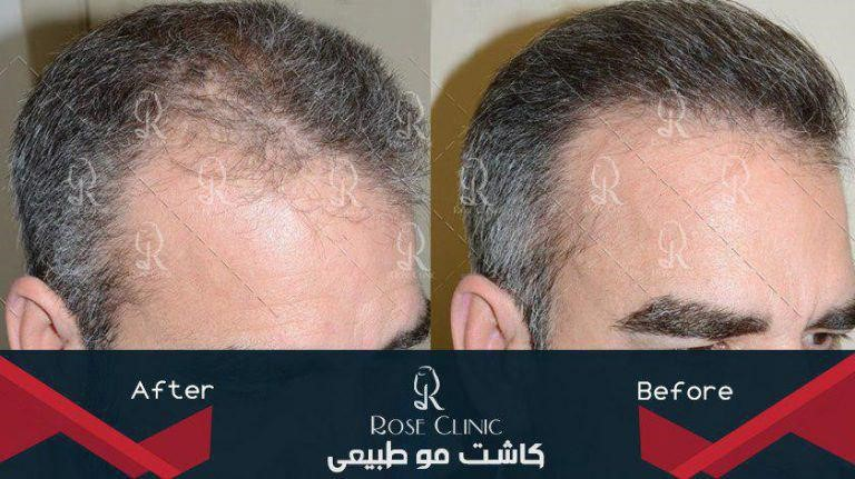 نکات مهم درکاشت مو