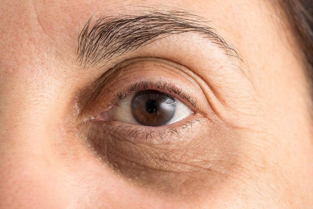 مزوتراپی برای دور چشم