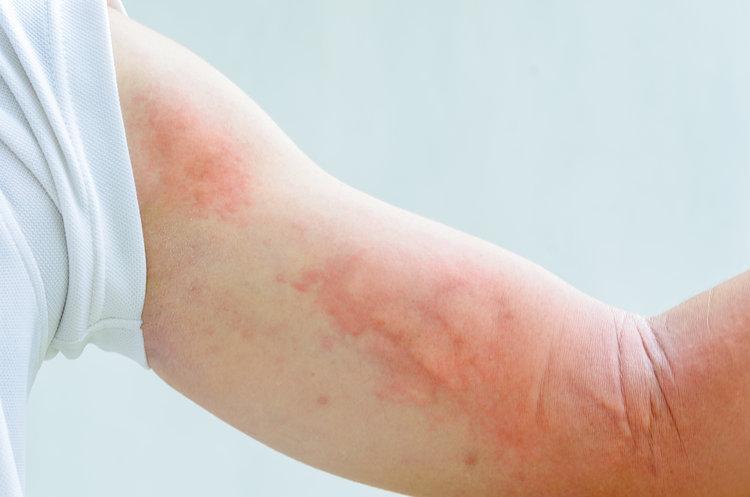 راش پوستی از علائم سرطان خون