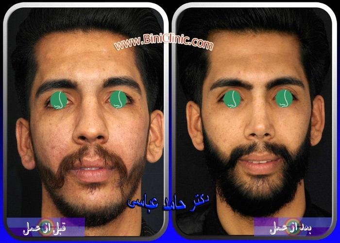 جراحی بینی یا رینوپلاستی چیست؟