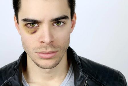 کبودی و ورم چشم