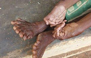 زنی که دارای رکورد بیشترین انگشت دست و پا است! (+عکس)