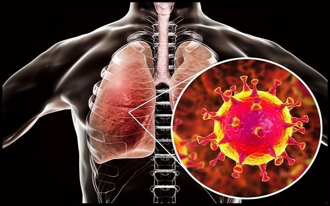 دیابت و افزایش خطر ابتلا به عفونتهای تنفسی ویروسی