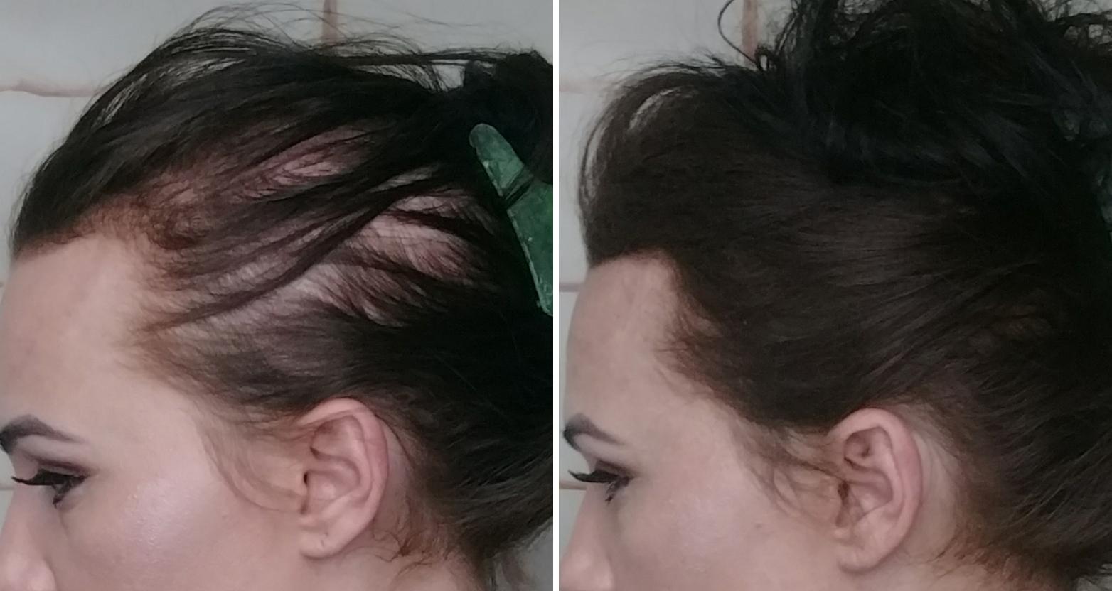 علت ریزش مو در زنان