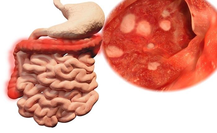 خطرات عدم درمان کولیت زخمی