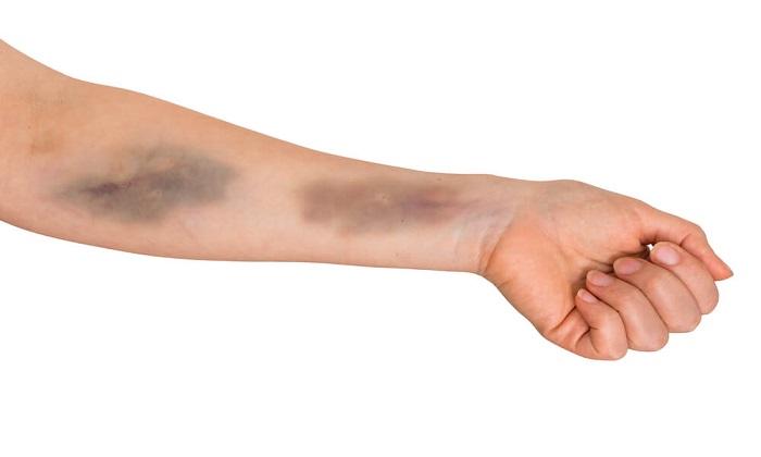 3 مکمل غذایی برای پیشگیری از کبودی پوست