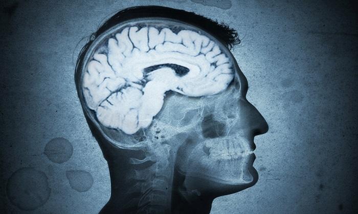تخریب مغز به واسطه باکتری ساکن دهان