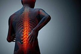 تنگی مجرای نخاع؛ علائم، دلایل، تشخیص و درمان