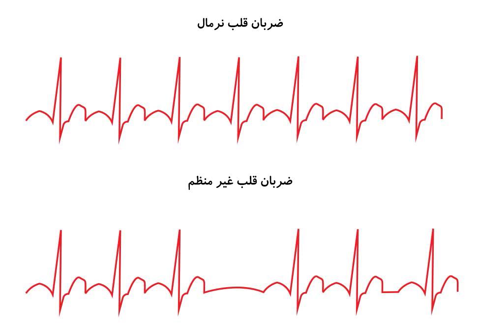 ضربان قلب نرمال