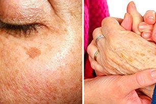 روش 11 برای از بین برن لکه های تیره پوست