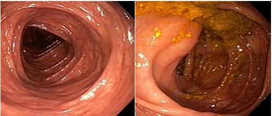 کولونوسکوپی روده بزرگ و کوچک: مراحل انجام و نکات قبل و بعد