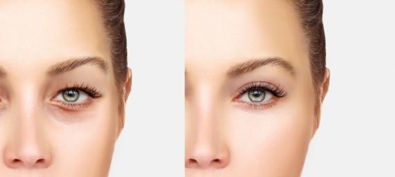بلفاروپلاستی: تخمینی از هزینه های عمل جراحی زیبایی پلک (لیفت پلک)