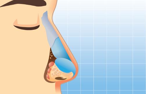 درمان تنفس از دهان با رینوپلاستی فانکشنال :رفع خشکی دهان هنگام خواب