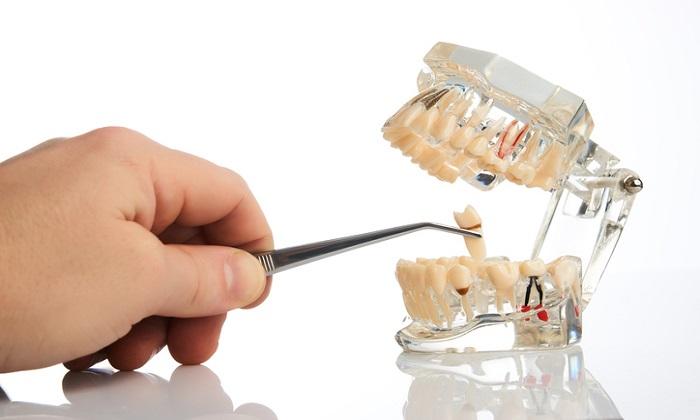 مراقبتهای پس از کشیدن دندان