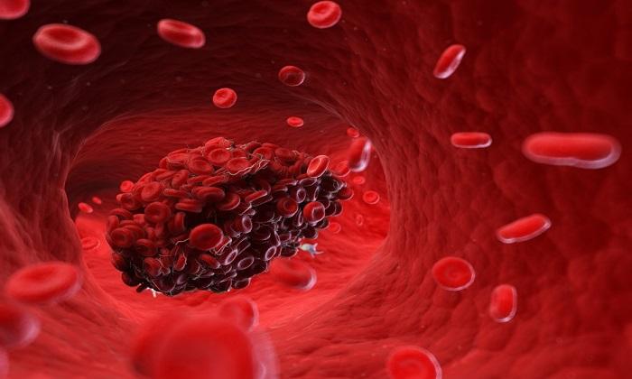 15 نشانه ترسناک وجود لخته خون در بدن