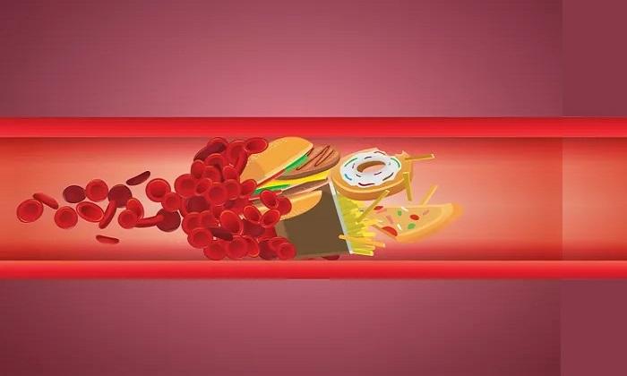درباره ارتباط رژیم غذایی و کلسترول!