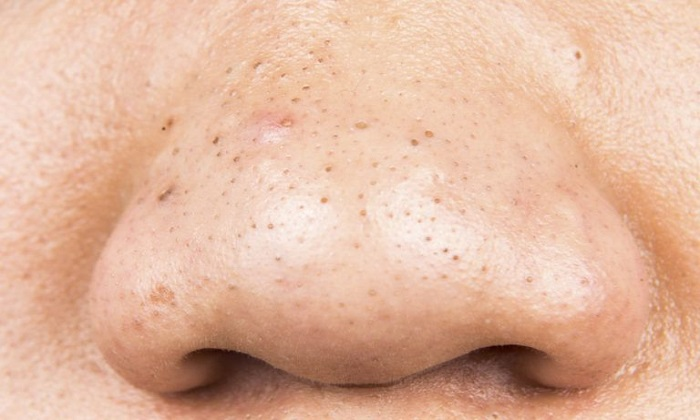 روشهایی طبیعی برای مقابله با دانههای سرسیاه پوست