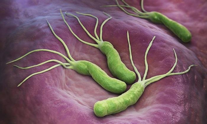 عفونت میکروبی معده؛ از علائم تا پیشگیری