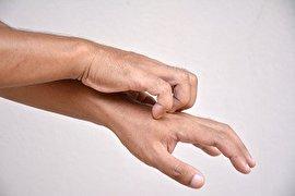 10 دلیل خارش شدید پوست