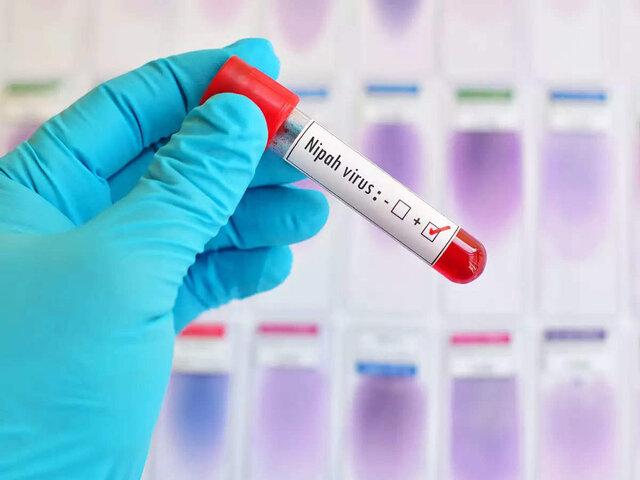 خطر همهگیری یک ویروس خطرناک در آسیا