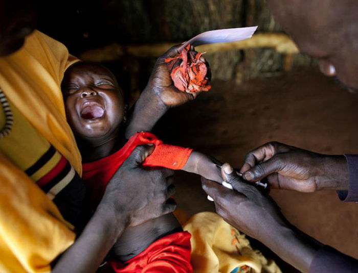 10 بیماری واگیردار و کشنده که صدها میلیون انسان را به کام مرگ کشاند
