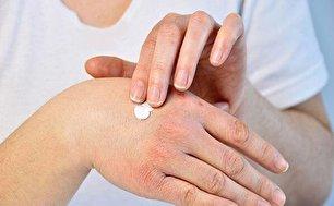 راه های درمان خشکی دست