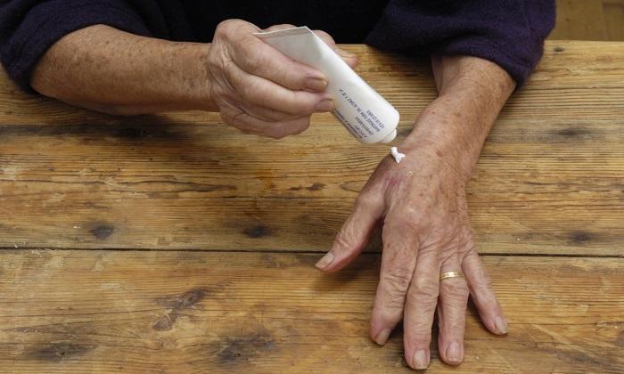 کرمهای تسکین دهنده آرتریت و آنچه باید درباره آنها بدانید