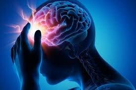 متخصص مغز و اعصاب: استرس روحی مهمترین دلیل اصلی سردرد است